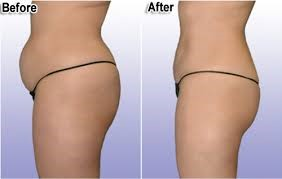 lipo-before-after
